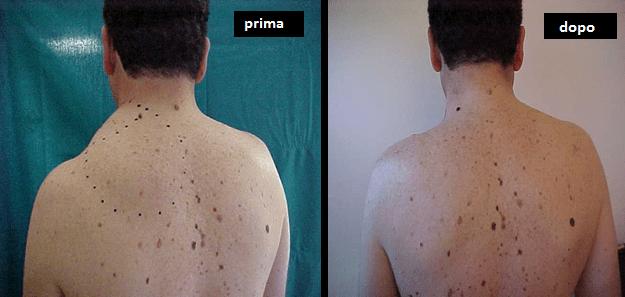 Lipoma – Asportazione chirurgica