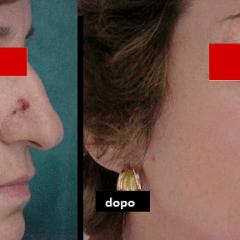 Carcinoma basocellulare del naso