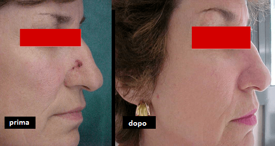Carcinoma basocellulare naso