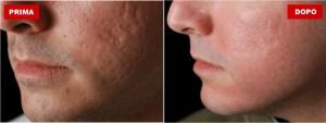 dermatologo acne a milano