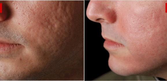 Cicatrici da acne trattate con laser CO2 frazionato