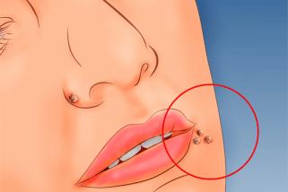 Verruche virali e piane recidivanti trattate con terapia fotodinamica