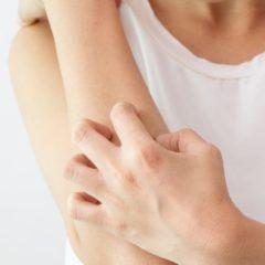 Dermatillomania