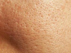 Segni del sebo sulla pelle