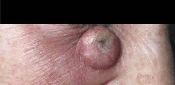 Carcinoma spinocellulare invasivo del volto